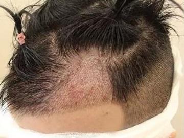 种植头发究竟要多少钱,贵不贵?
