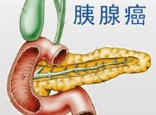 这四种症状出现可能就是胰腺癌晚期了