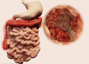 这几种症状出现可能就是直肠癌了