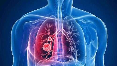 预防肺癌的几个生活习惯