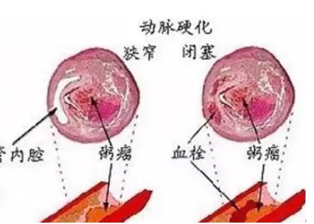 动脉硬化的常见症状有哪些