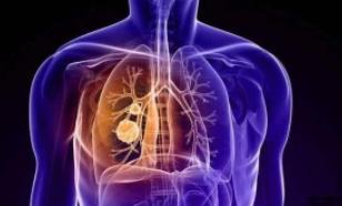 早上起来肺部疼是怎么回事