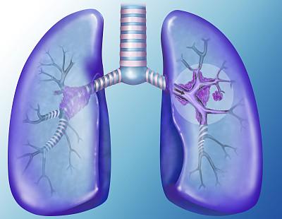 肺癌发病率第一 早期5大症状