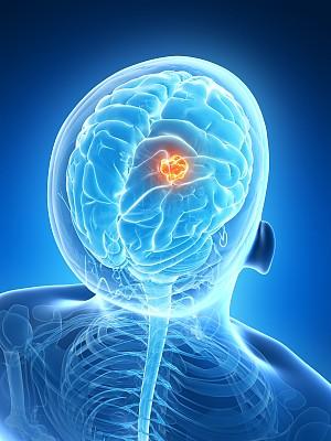 妇人半身麻痹竟是肺癌转移脑癌