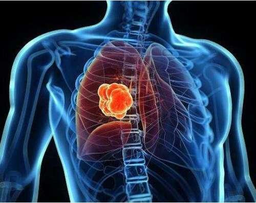 肺癌手术后饮食上的注意点