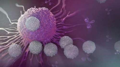 公公大肠癌不想化疗怕辛苦,影响大吗?