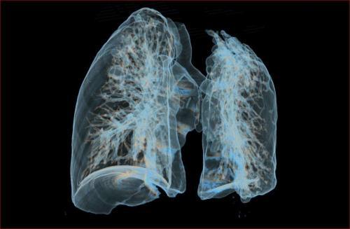 美国仅1%女性有防肺癌意识