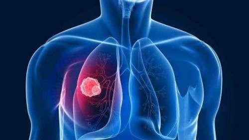 预防肺癌推荐这几种食物
