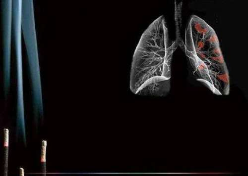 吸烟导致癌症戒烟肺部能恢复健康
