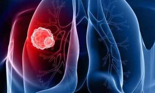 电视剧里的肺癌咳血究竟是不是真的