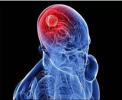 脑癌是如何形成的