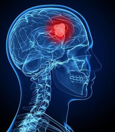 脑瘤患者可以吃的补脑食物