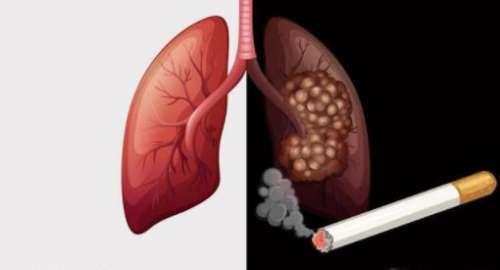详解肺癌晚期便秘诱因