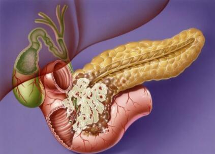 中医对症治疗分型胰腺癌