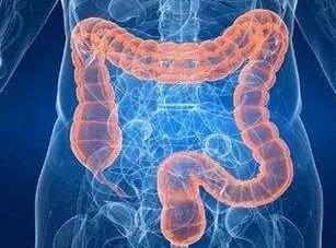 如何预防直肠癌的发生
