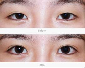 双眼皮手术既安全又美丽,你在犹豫什么?