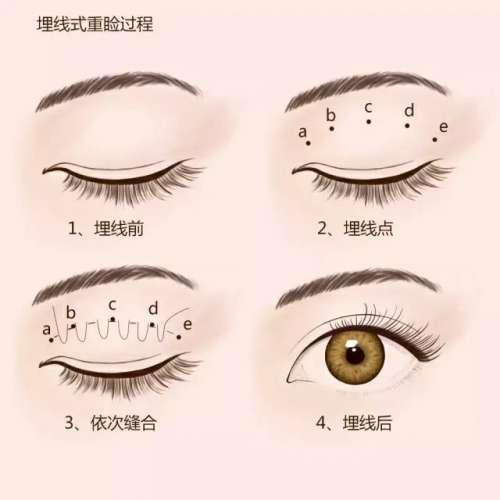 双眼皮,对一个人的颜值改变有多大?