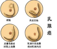 出现哪些症状代表患有乳腺癌