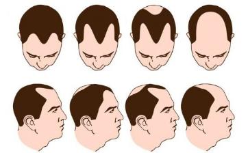 掉头发厉害怎么办?吃什么长头发又密又多