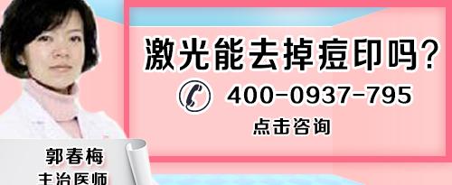 上海哪个医院看痘痘比较好?