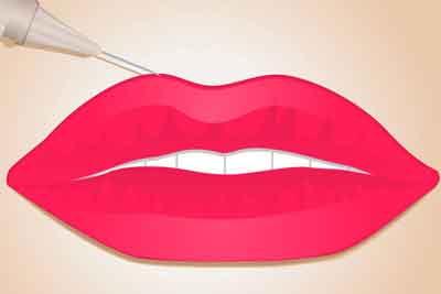 玻尿酸丰唇手术后怎么样去护理?