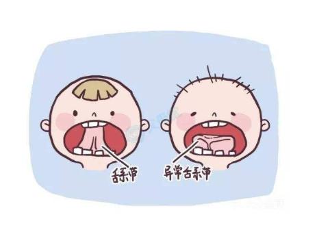 唇系带切除术的手术什么时候做最恰当?