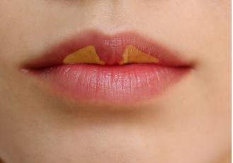 唇珠对一个人的唇部改变有多大?唇珠大好不好看?