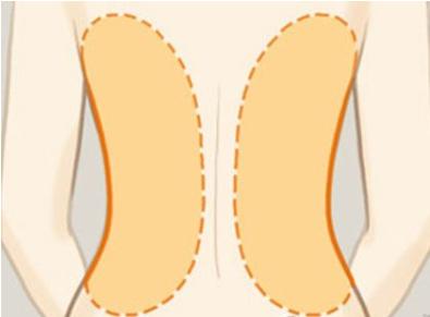 背部吸脂手术术前需要做好哪些准备呢?
