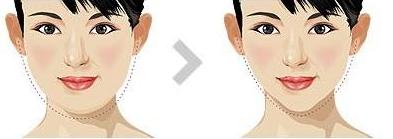 面部吸脂后几天能恢复?要怎么护理?