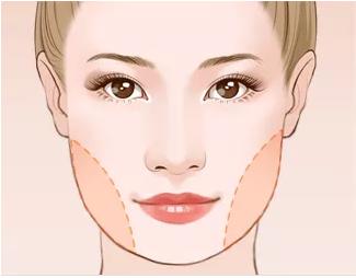 面部吸脂术后会留疤吗?术后会反弹吗?
