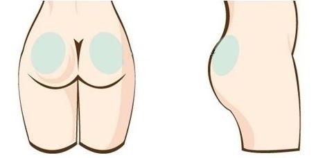 臀部吸脂是怎么样进行吸脂的?