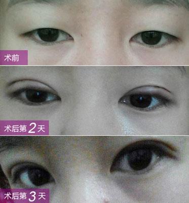 博仕仿生理双眼皮真实效果图