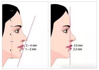 手术隆下巴虽然有切口,但是在口腔内下唇粘膜处(如下图),所以不