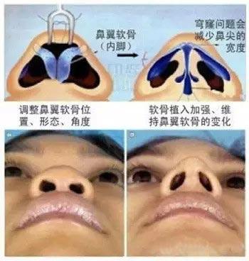 什么是鼻综合整形术看图解