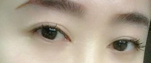 我的肿泡眼割双眼皮恢复过程