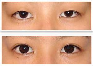 上海压双眼皮是怎么做的