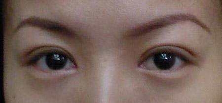 韩式双眼皮有都有哪些优势?