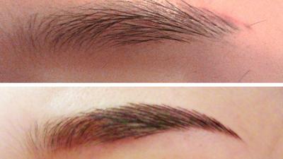 眼睛表皮结构图