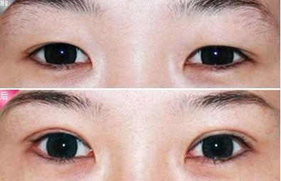 南京华美整形做双眼皮效果图