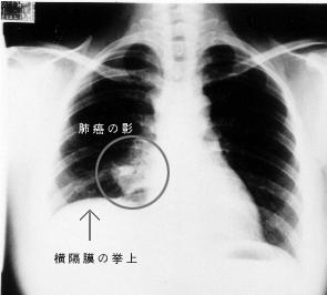 肺癌新药美国获批上市 肺癌患者新福音