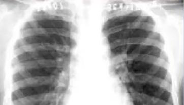 肺癌胸腔恶积液如何治疗好