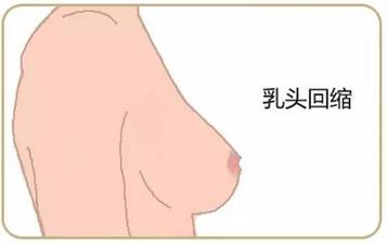 病人乳腺癌早期症状的图片
