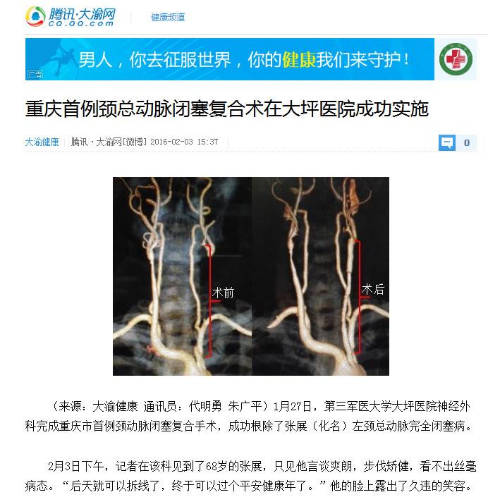 重庆首例颈总动脉闭塞复合术在大坪医院成功实施