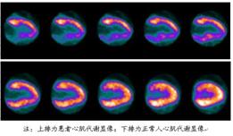 PET-CT帮助判断心肌存活