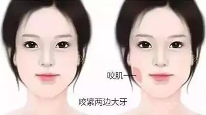 实上,从眼皮到肚皮都可以打.溶脂针注射后使脂肪的新陈代谢加速,