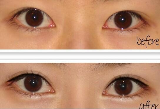 z形内眼角的缝合图解