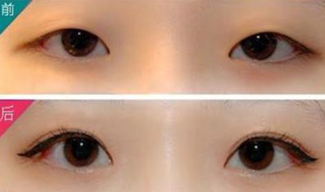 常州割韩式双眼皮效果好不好