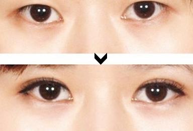 微创双眼皮术是韩式三点吗