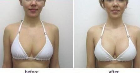 揭开女性隆胸背后的神奇面纱_医生在线