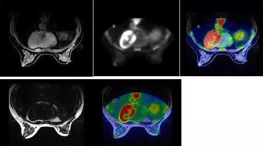 一体化PET/MR在乳腺癌应用